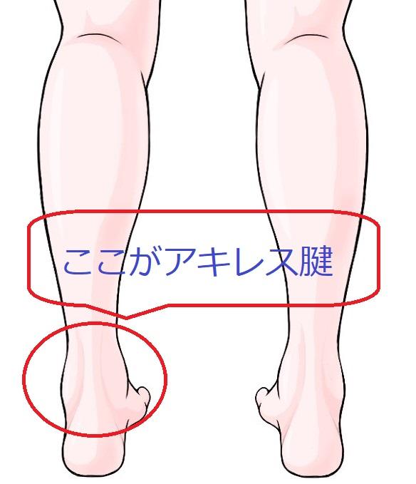 前兆 アキレス腱 切れる アキレス腱炎 (あきれすけんえん)